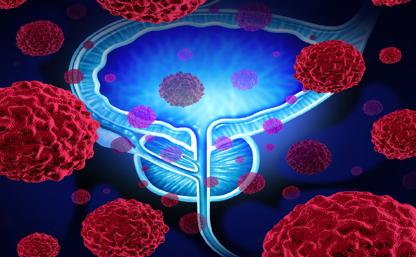 Prostate trial extended | Cancer Trials Ireland