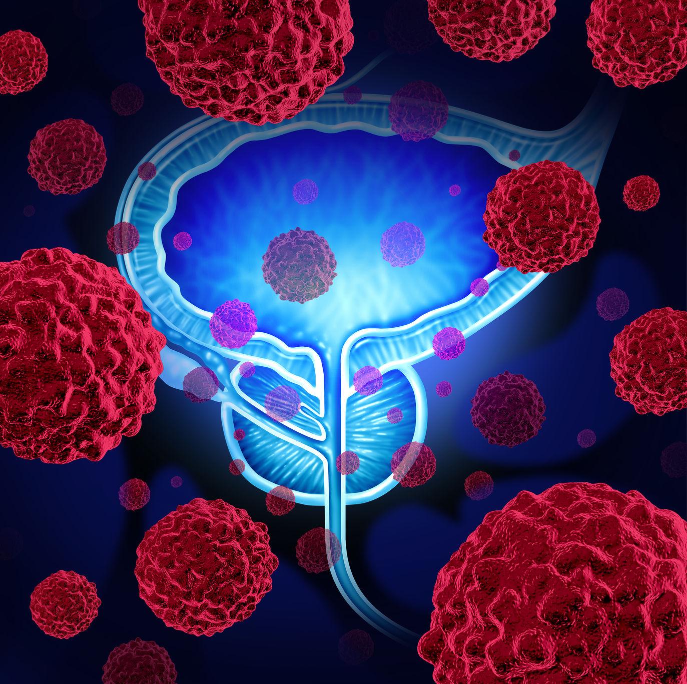 Landmark trial results | Cancer Trials Ireland